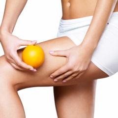 Cause della Cellulite e da Cosa è Provocata