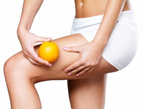 cause della cellulite